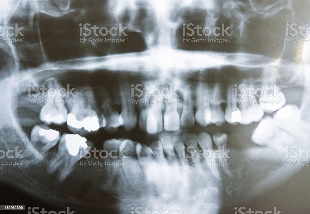 Abstract of human skull on teeth stock photo