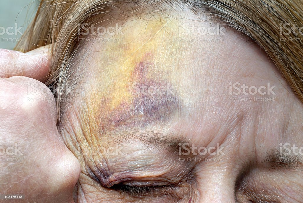 Abused Woman and Man's Fist Against Her Battered Face royalty-free stock photo