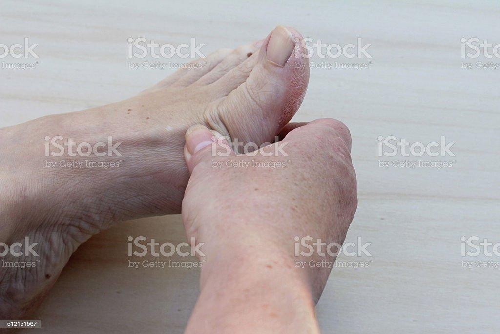 aching foot stock photo