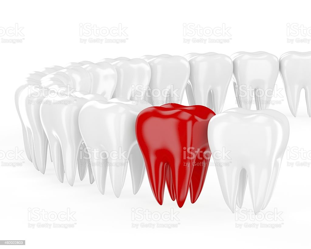 Aching tooth in row of healthy teeth. 3d stock photo