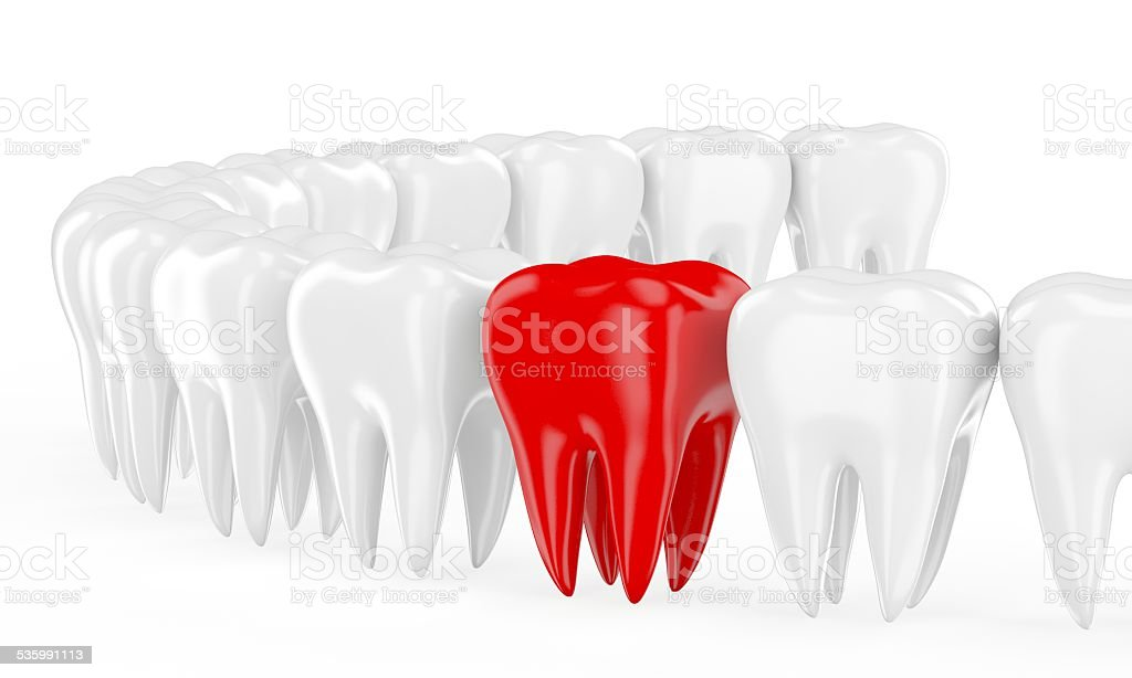 Aching tooth in row of healthy teeth stock photo