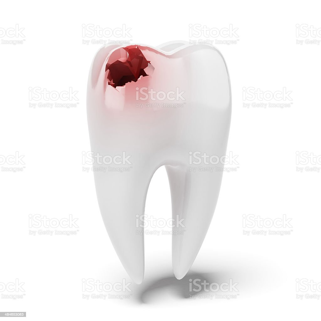 Aching tooth stock photo