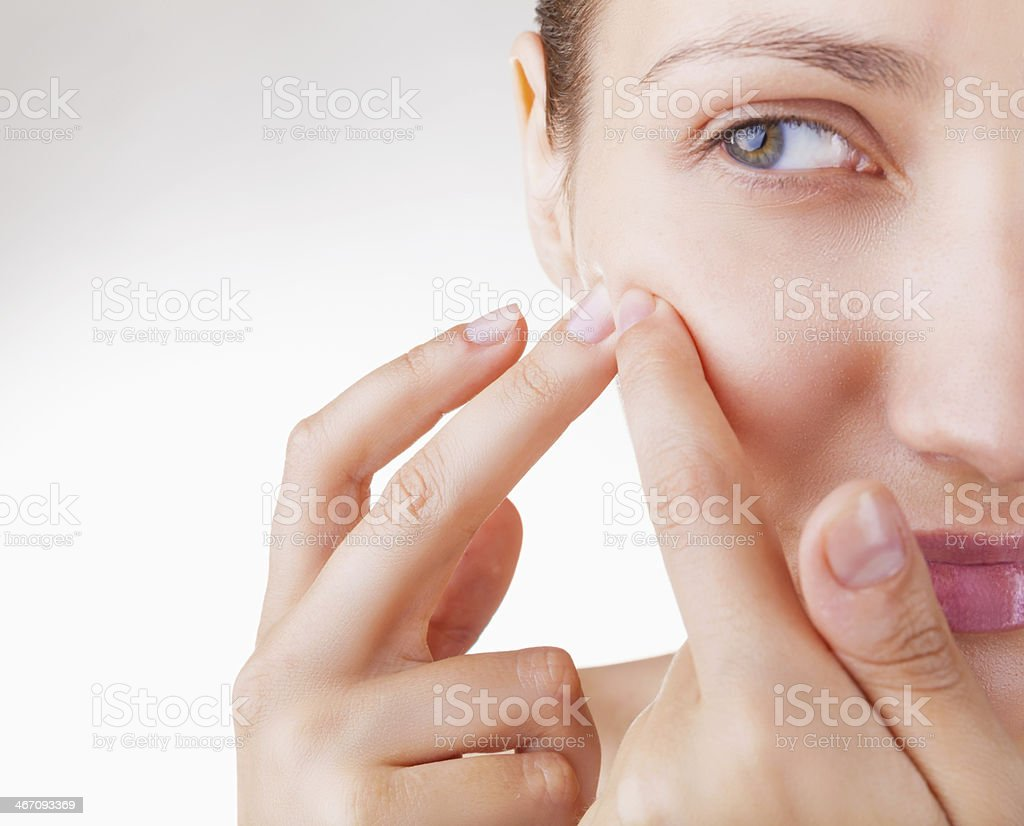 Acne in women stock photo