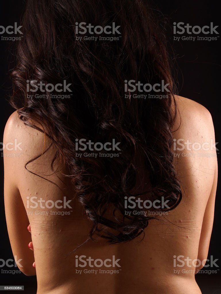 acne on a females back stock photo