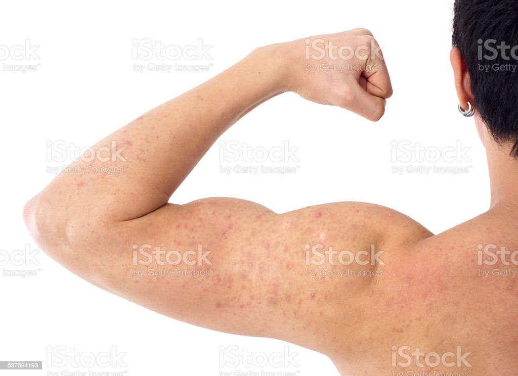 acne on a male's arm and shoulder stock photo