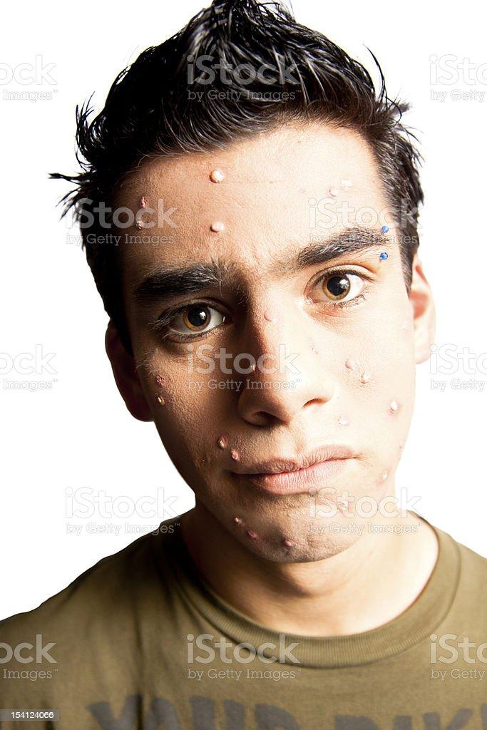 acne royalty-free stock photo