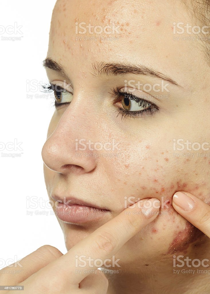 acne problems royalty-free stock photo