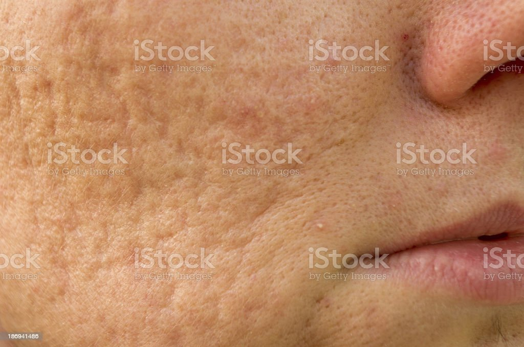 Acne scars stock photo