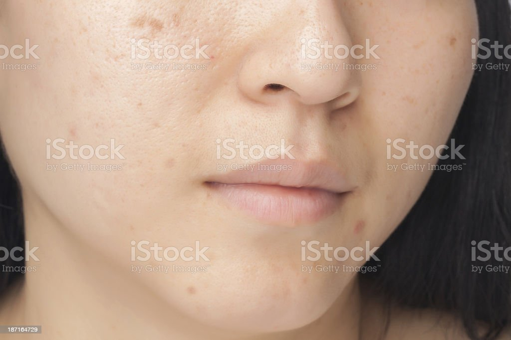 Acne spots stock photo