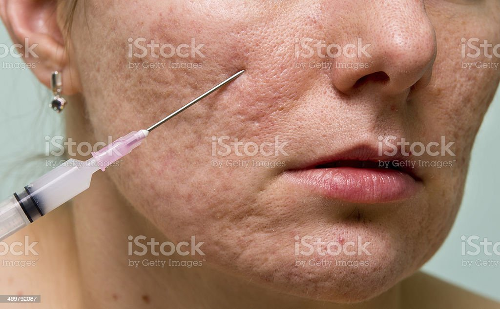 Acne treatment stock photo