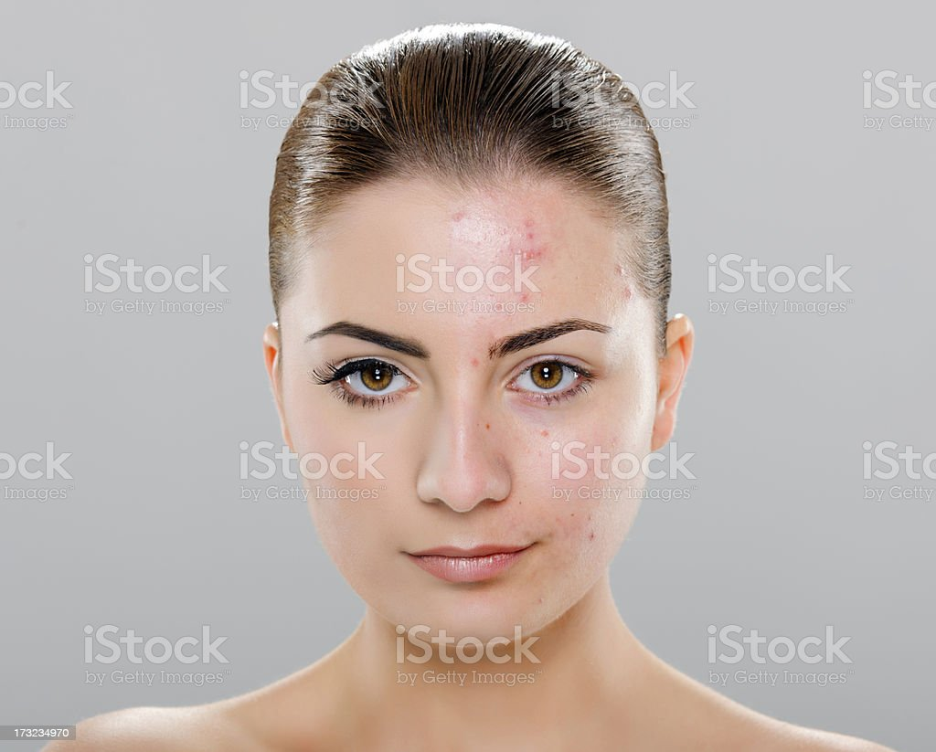 acne woman stock photo