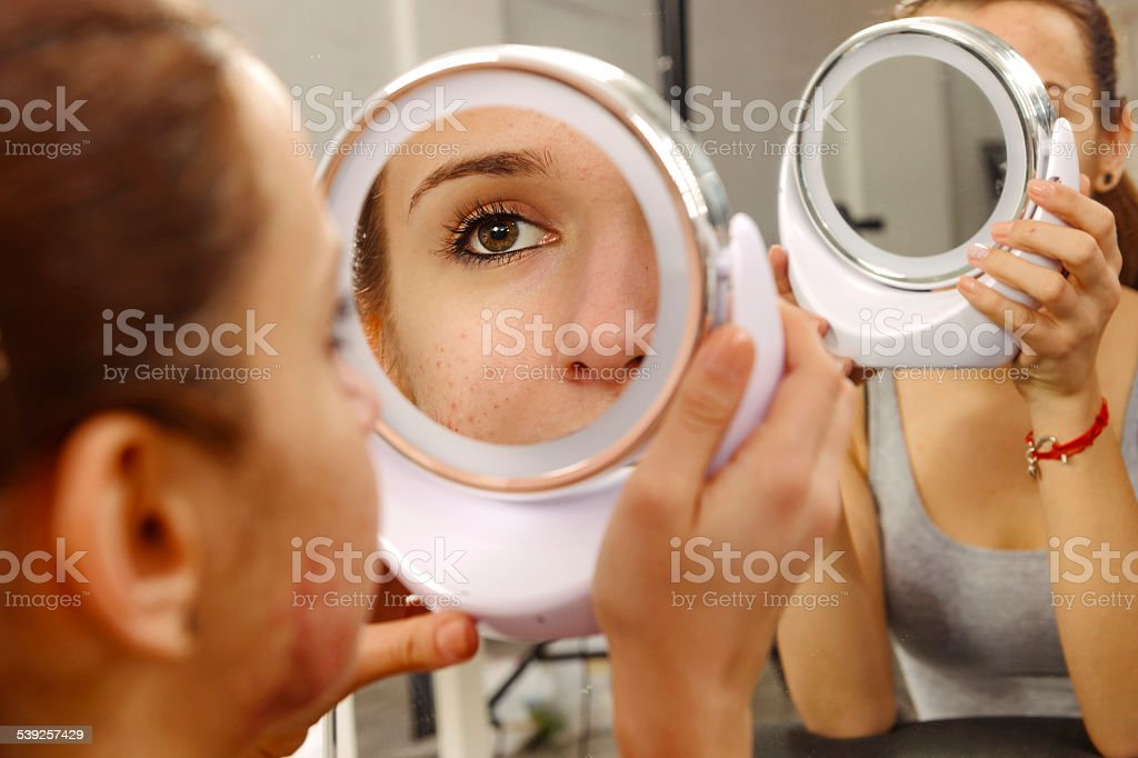 acneic woman portrait stock photo