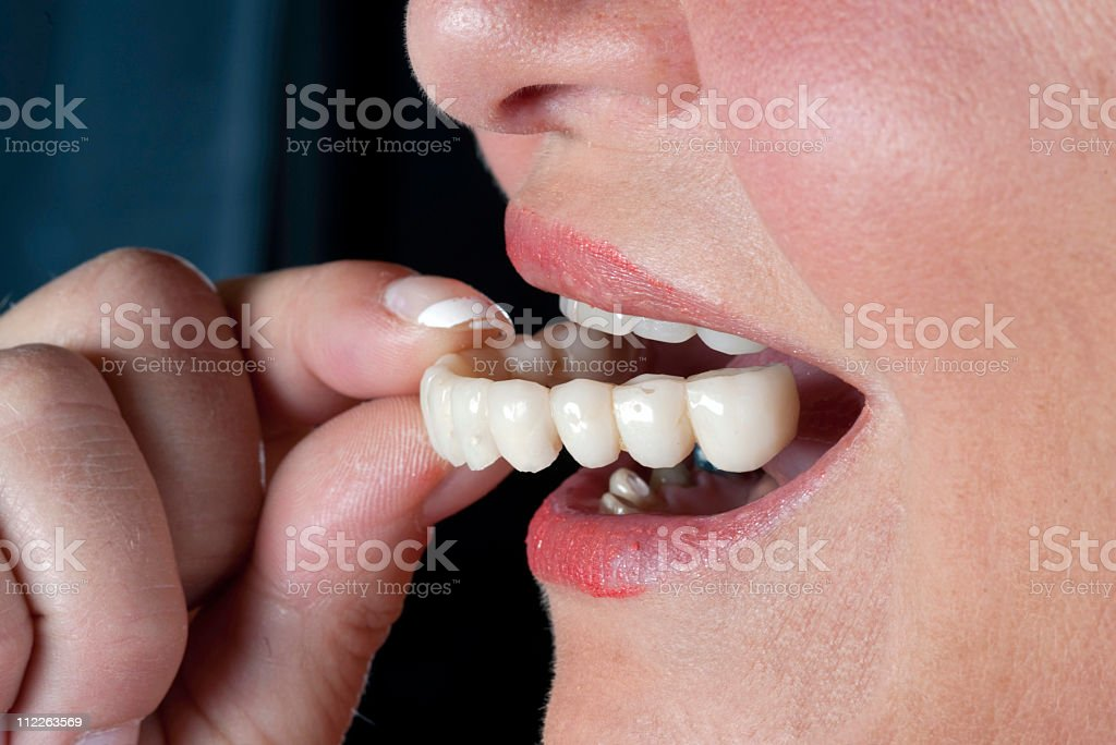 acrylic temporary teeth stock photo