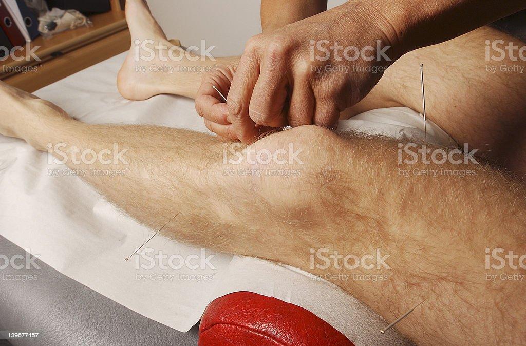 acupuncture 1 stock photo