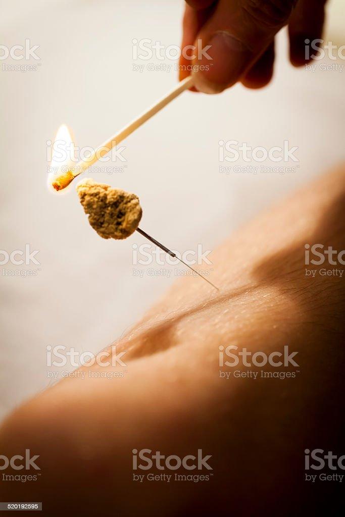 Acupuncture. Lighting needle stock photo