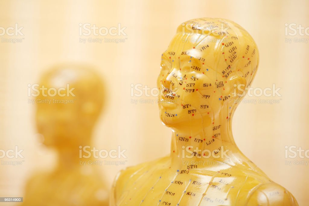 Acupuncture model masculine with woman royalty-free stock photo