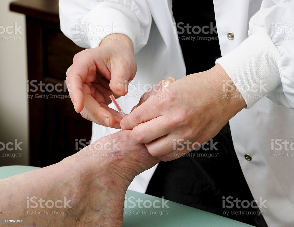 Acupuncture needle Being Applied to a Foot royalty-free stock photo