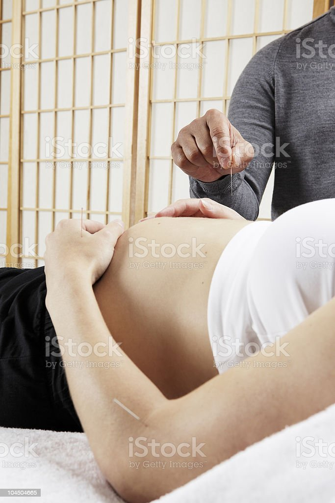Acupuncture on pregnant woman royalty-free stock photo