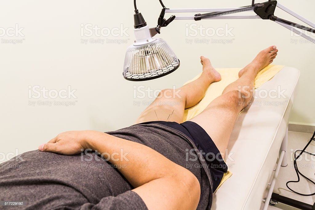 Acupuncture patient being treated with needles and infrared heat stock photo