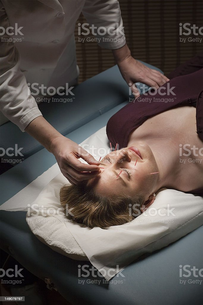 Acupuncture patient royalty-free stock photo