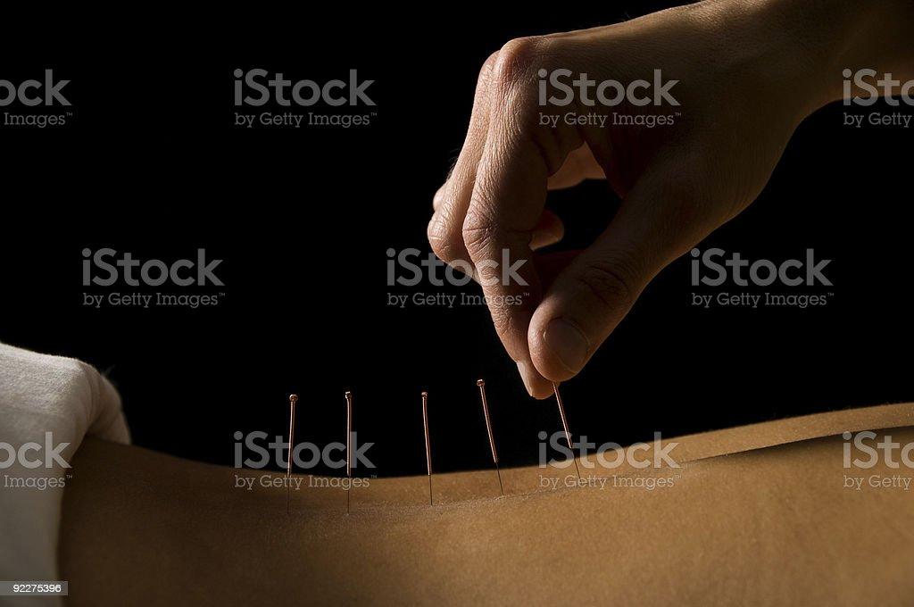 Acupuncture stock photo