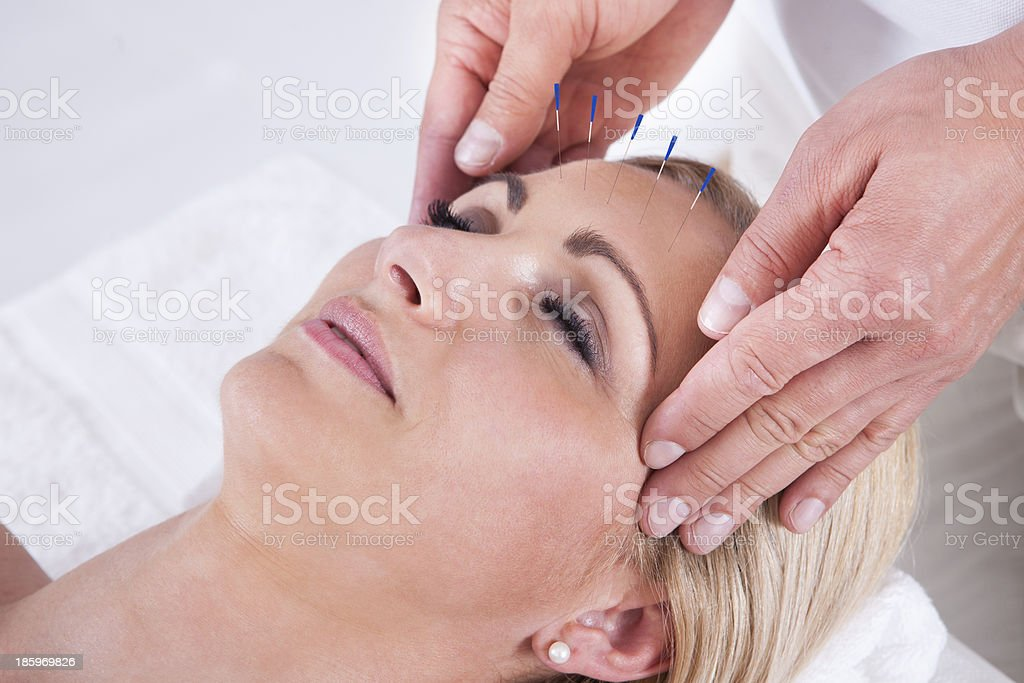 Acupuncture Therapy In A Spa Center stock photo