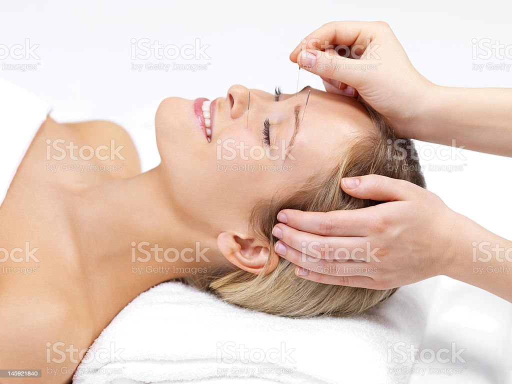 Acupuncture therapy of a beautiful young woman stock photo