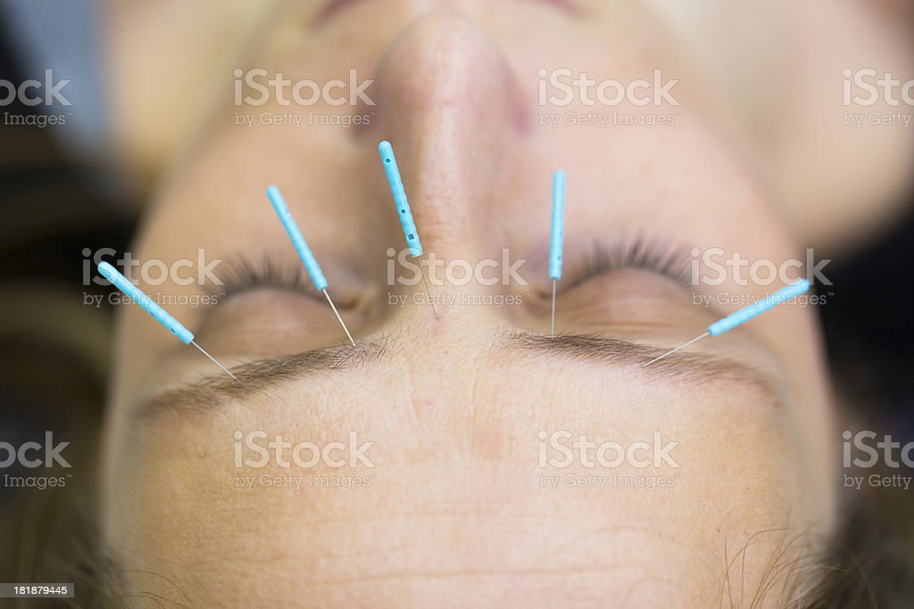 Acupuncture therapy of a young woman royalty-free stock photo