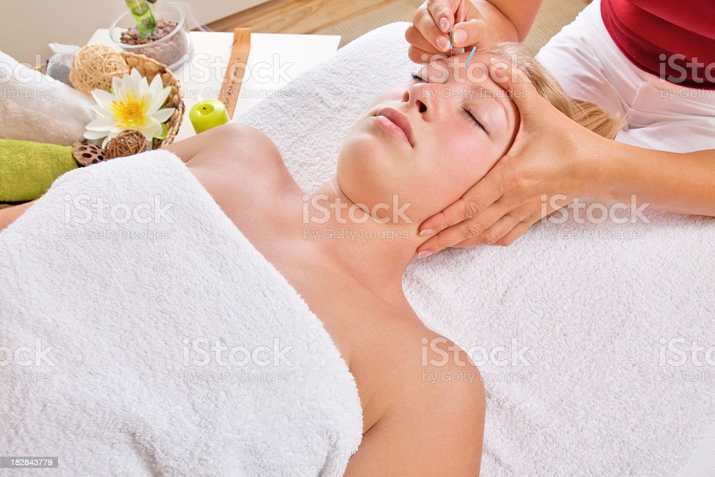 Acupuncture therapy royalty-free stock photo