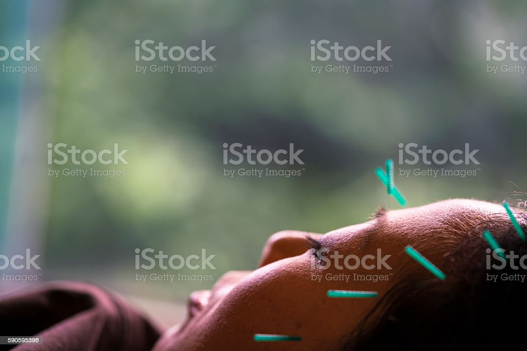 Acupuncture treatment in Kyoto, Japan stock photo