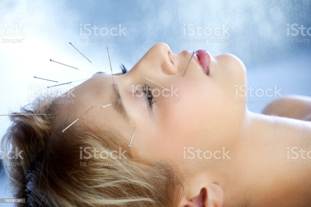 Acupuncture treatment stock photo