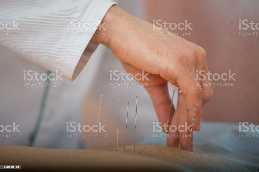 acupuncture treatments, placement of medical needles on the patient, close-ups stock photo