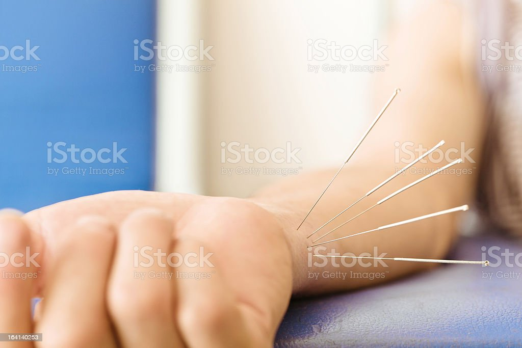 acupuncture wrist royalty-free stock photo