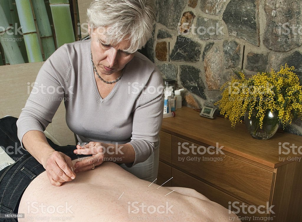 Acupuncturist Putting Needle in Patient's Back stock photo