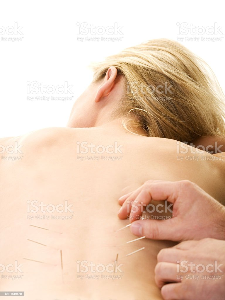 acupunture royalty-free stock photo