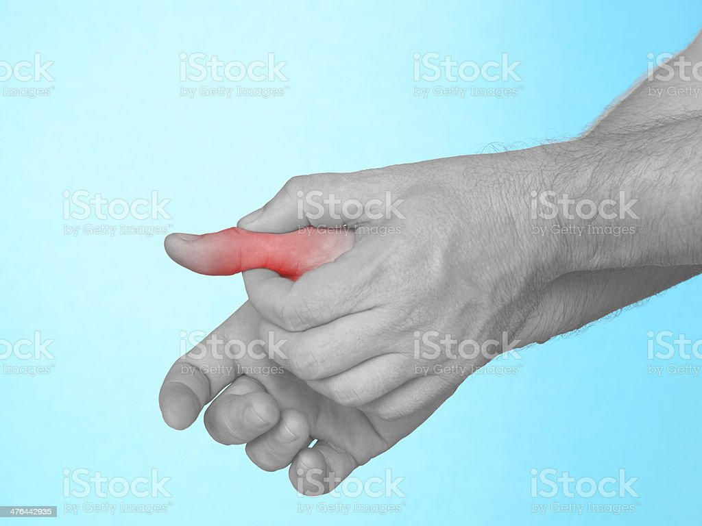 Acute pain in palm of hand. royalty-free stock photo