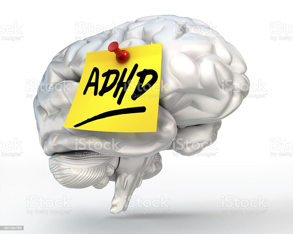 adhd yellow note on brain stock photo