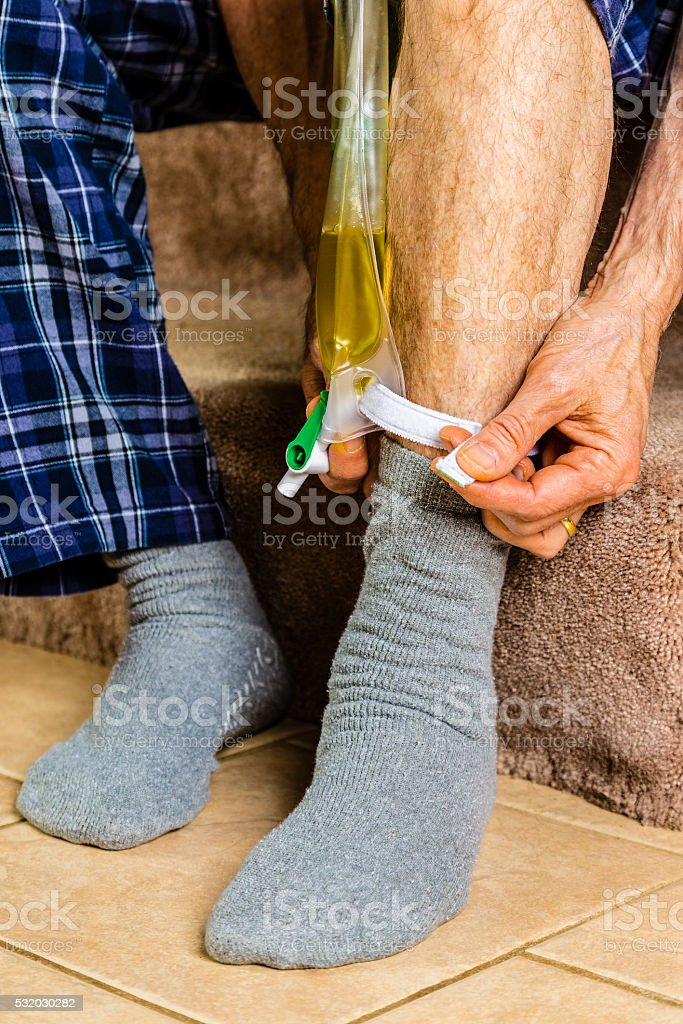 Adjusting a Urinary Collection Bag stock photo