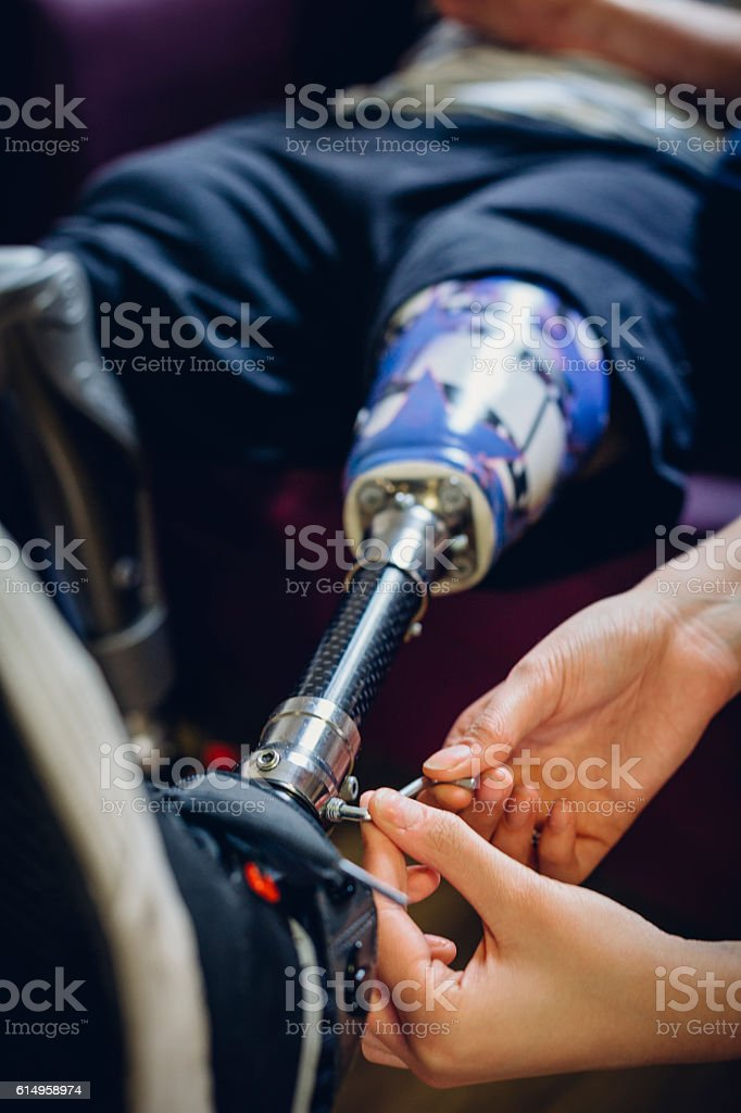 Adjusting Prosthetic Leg stock photo