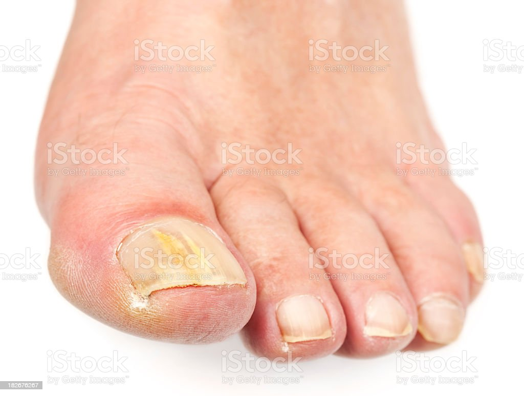 Adult foot with toenail fungus, the worst being the big toe stock photo