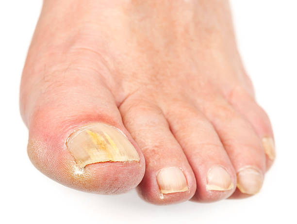 Виды ногтей на ногах