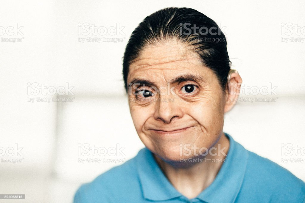 Adult Mexican woman with down syndrome stock photo