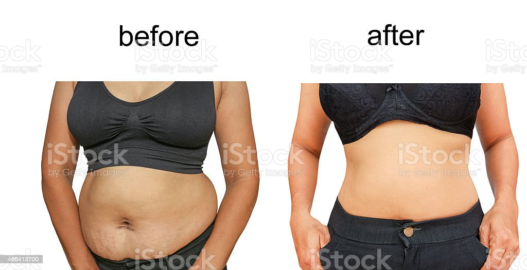 after a diet stock photo