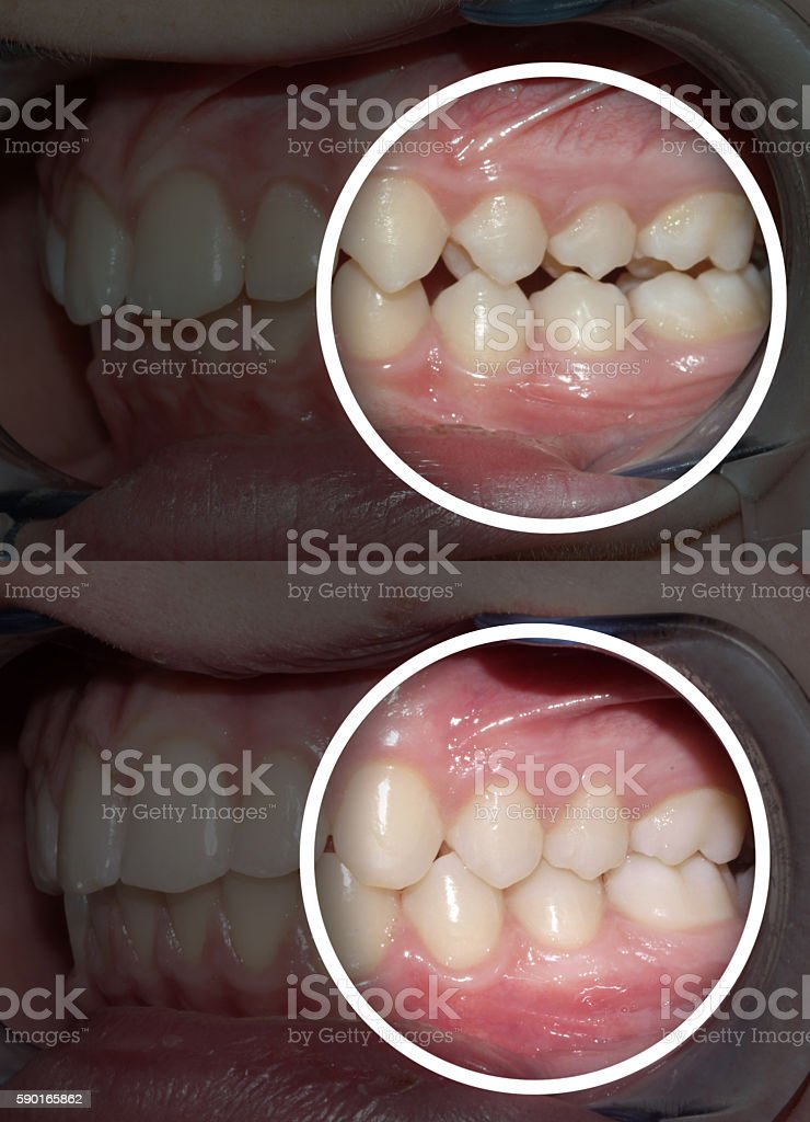 after and before orthodontic treatment stock photo