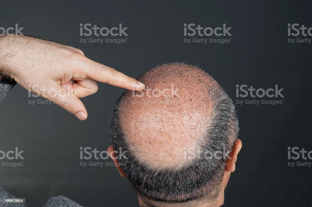 after hair transplant royalty-free stock photo