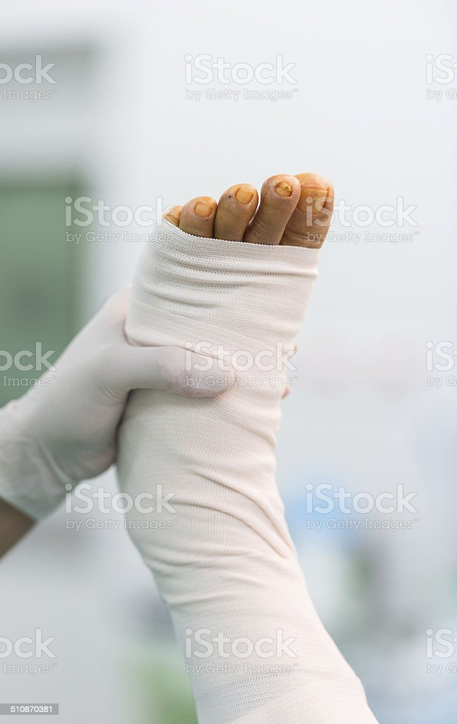 after harvest greater saphenous vein stock photo