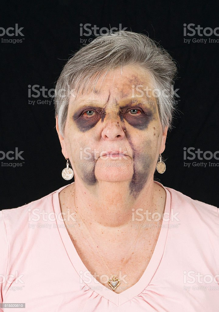 Aftermath of a Broken Nose stock photo