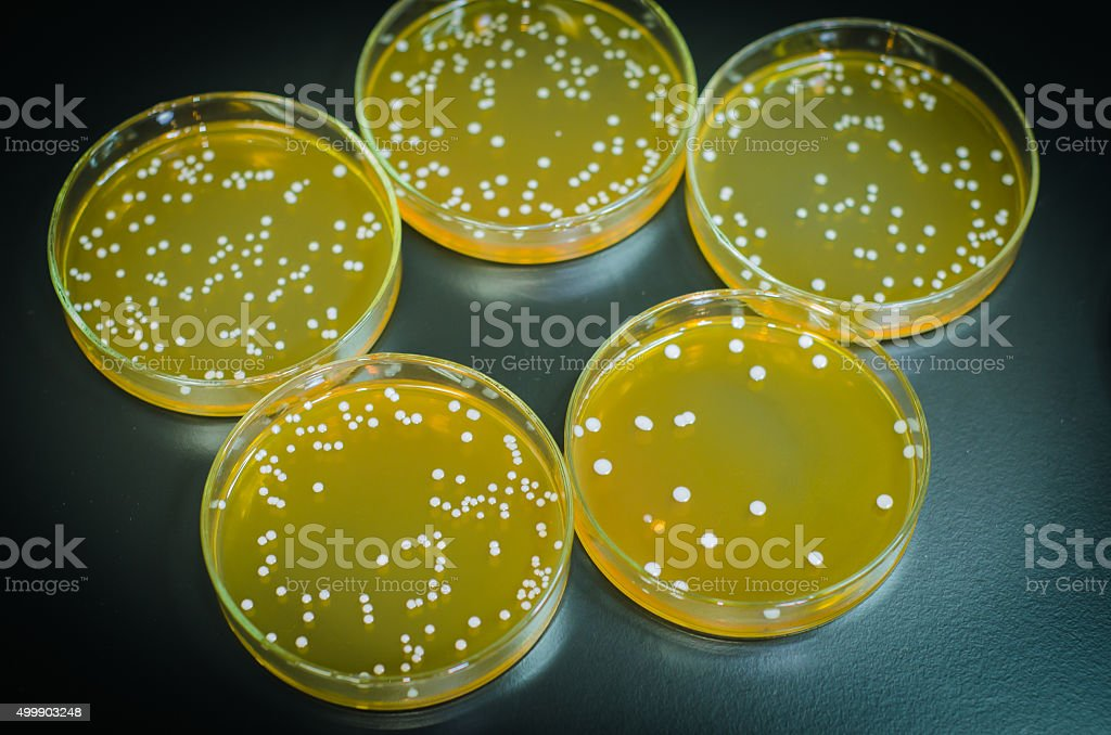 Agar plate full of  micro bacterias and microorganisms stock photo
