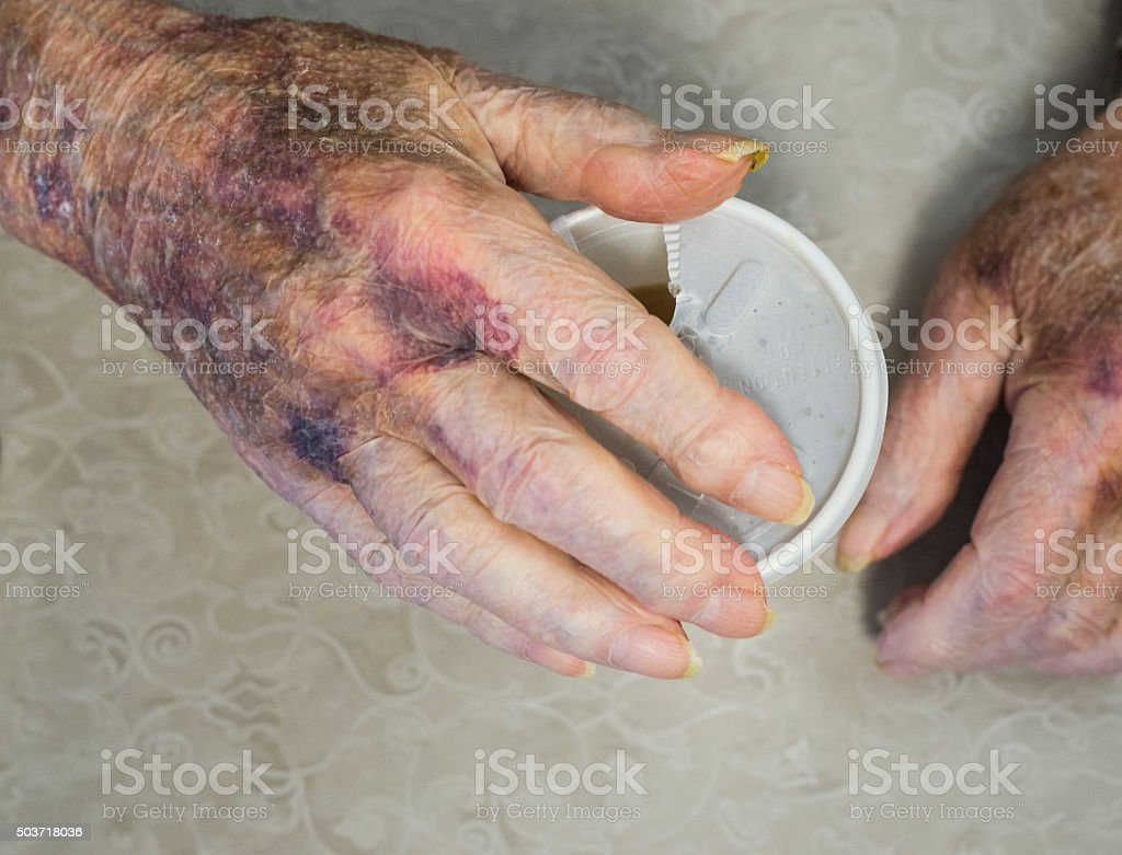 Aging hands with bruises and age spots stock photo