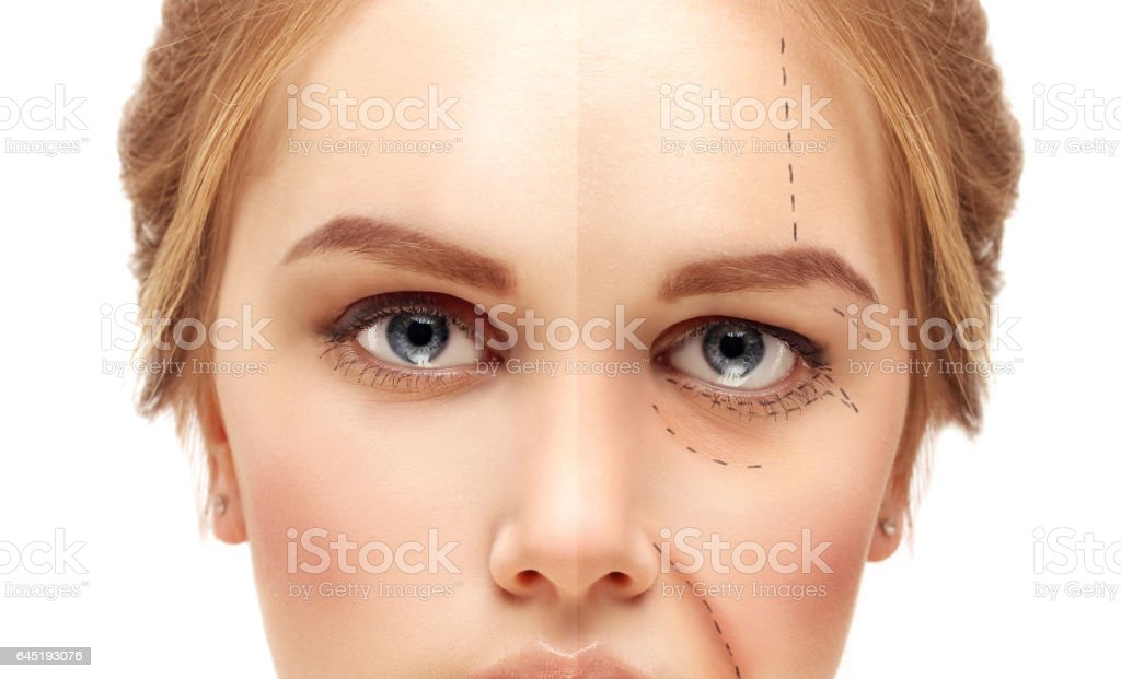 Aging. Mature woman-young woman.Marking the face.Perforation lines on females face, plastic surgery concept. stock photo